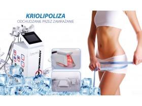 Kriolipoliza - wymrażanie tkanki tłuszczowej